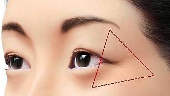 Sức khỏe: Thực hiện 7 mẹo chăm sóc da để vết chân chim giảm dần